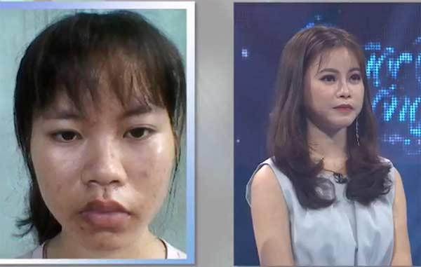 Cô sinh viên trường ĐH Y Hà Nội như búp bê sau phẫu thuật thẩm mỹ - 1