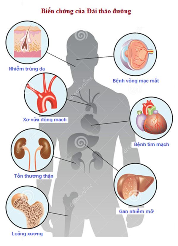 Hành trình chống lại tiểu đường của Toppy và sứ mệnh vì sức khỏe cộng đồng - 1