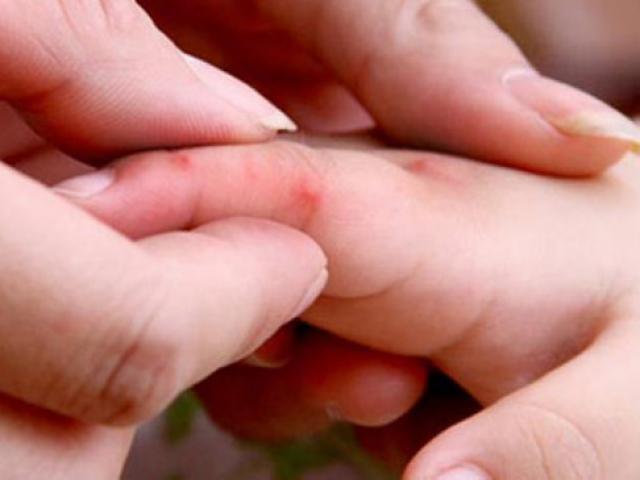 Làm thế nào để xác định chính xác con bị mắc tay chân miệng?