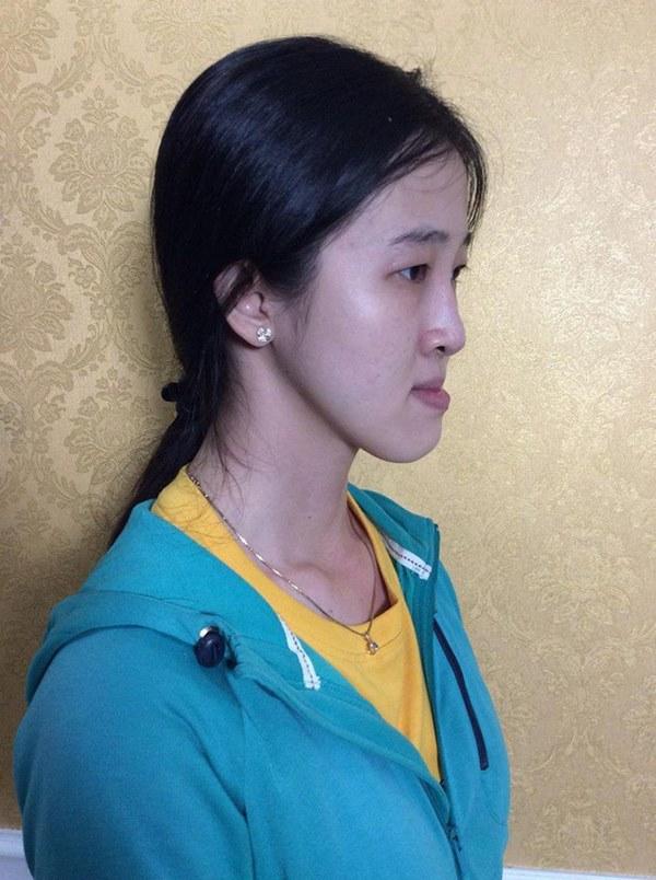 """Không dám yêu ai vì cằm bồ nông, cô gái Sài Gòn quyết """"lột xác"""" thành mỹ nhân - 1"""