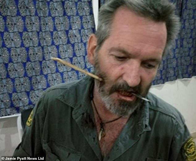 Bị mũi tên găm trúng mặt, thợ săn Kenya sống sót thần kỳ - 1