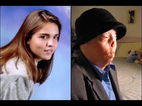 Khuôn mặt cô gái xinh đẹp biến dạng vì bị tài xế teen đâm trong lúc say - 1