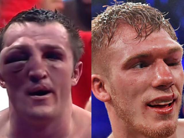 Boxing ác liệt: Kinh hãi võ sỹ mắt sưng to như bóng tennis