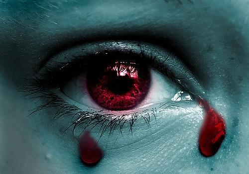 Giọt lệ máu – dấu hiệu bệnh cực hiếm và nguy hiểm - 1