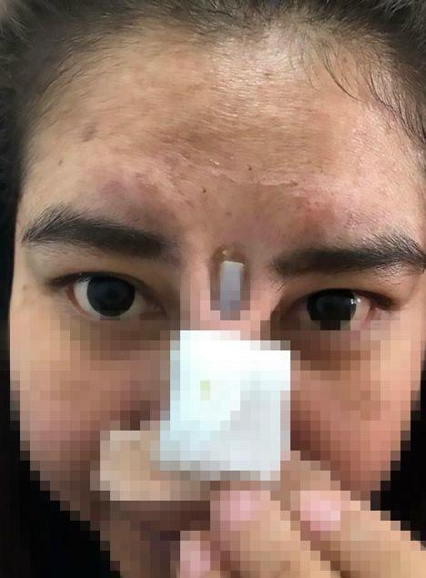 """Loạt thảm họa mũi hỏng ở """"thiên đường thẩm mỹ"""" Thái Lan - 1"""
