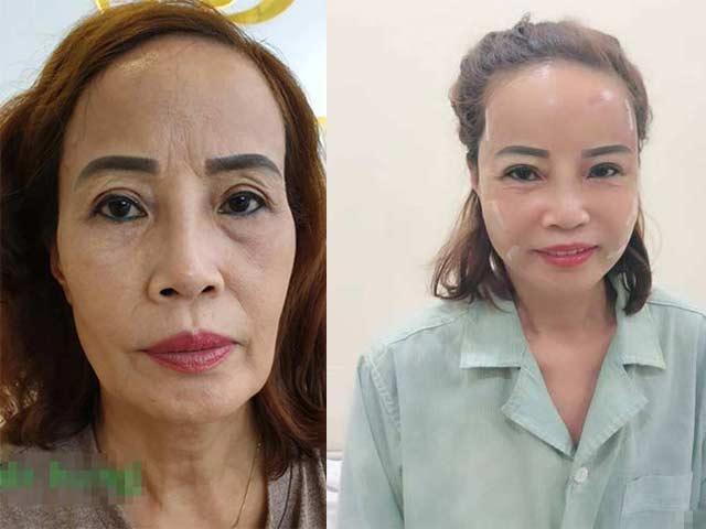 Cô dâu 62 tuổi và khuôn mặt mới tân trang có thể giữ lâu dài?
