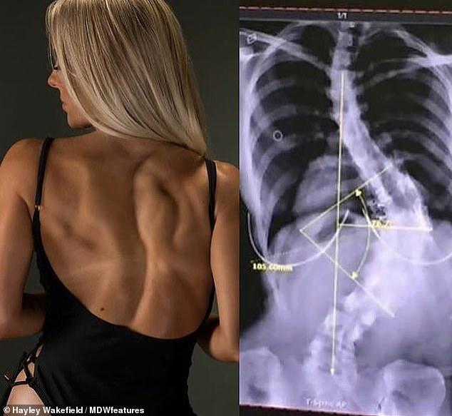 Cô gái trẻ có xương sống cong 80 độ vẫn bất chấp không chịu phẫu thuật - 1