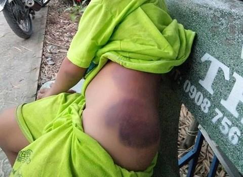 Bé trai lớp 1 khuyết tật nghi bị cô giáo đánh bầm tím người - 1