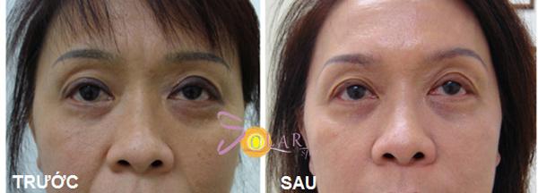 Xoá bọng mỡ mắt không phẫu thuật trong 90 phút - 1