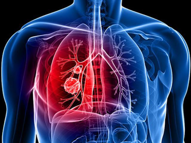 14 dấu hiệu sớm bệnh ung thư phổi, sát thủ giết gần 100 nghìn người Việt mỗi năm