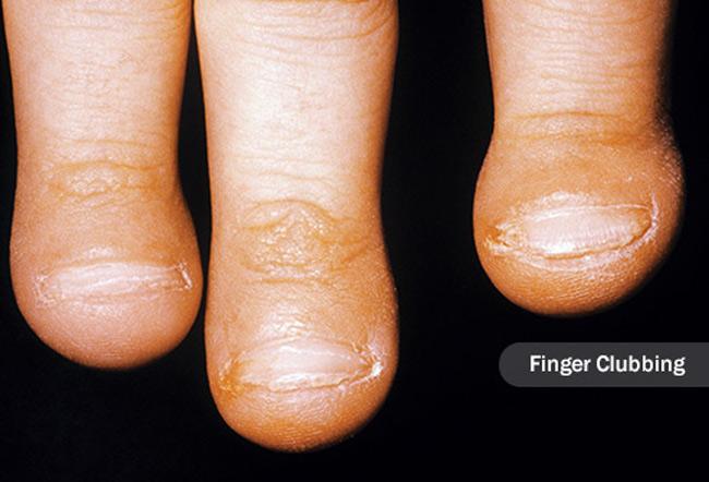 1. Ngón tay mập hơn bình thường: Một số khối u phổi tạo ra các hóa chất giống như hormone. Một trong số chúng đẩy nhiều máu và chất lỏng đến các mô trong ngón tay, vì vậy chúng trông dày hơn hoặc lớn hơn bình thường. Da bên cạnh móng tay có vẻ sáng bóng hoặc móng tay có thể cong hơn bình thường khi bạn nhìn chúng từ bên cạnh. Nó không phổ biến, nhưng hình dạng ngón tay có liên quan mạnh mẽ đến ung thư phổi: khoảng 80% những người mắc bệnh có dấu hiệu này.
