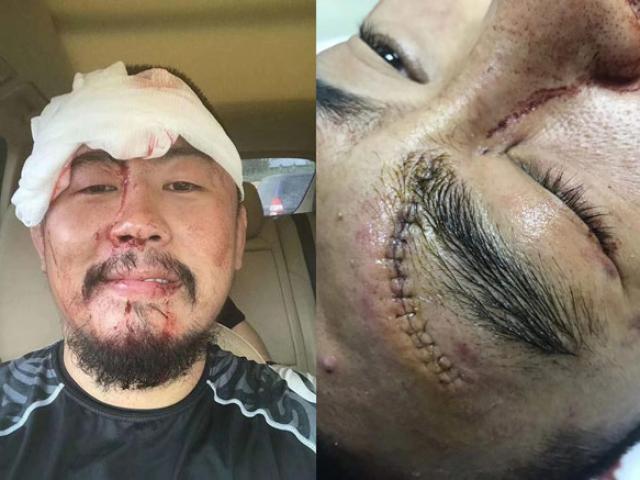 """Từ Hiểu Đông làm loạn võ Trung Quốc 2018: Bị đánh """"thân tàn ma dại"""""""