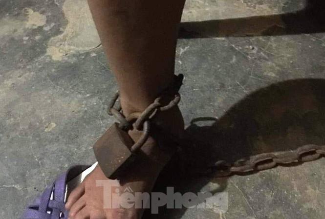 Chồng dùng xích sắt trói chân vợ vào cột nhà - 1