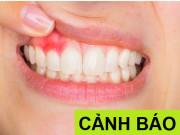 """Tin tức sức khỏe - Viêm lợi, viêm nướu răng - những """"hiểm họa"""" khôn lường"""