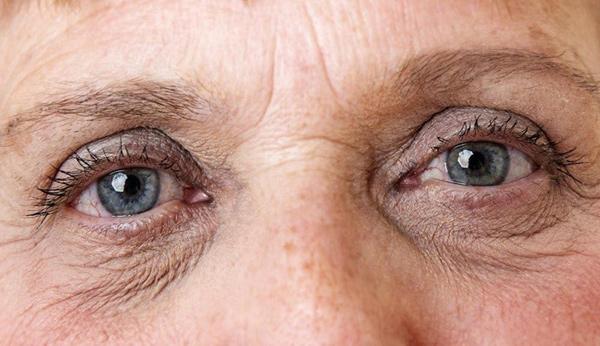 Bật mí cách chọn kem dưỡng da mắt phù hợp với từng độ tuổi - 1