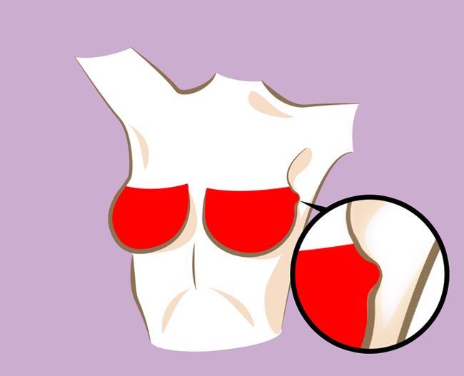 Có 6 dấu hiệu này ở ngực chứng tỏ bạn có nguy cơ mắc bệnh nguy hiểm - 1