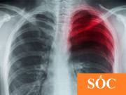 Tin tức sức khỏe - Chuyên gia tiết lộ cái kết cực sốc cho bệnh nhân đờm, ho, khó thở dai dẳng