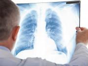 Tin tức sức khỏe - Thời sự VTV1 đưa tin cách khống chế viêm phế quản mạn, đờm, ho, khó thở thành công