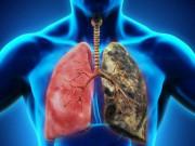 Tin tức sức khỏe - Đờm, ho, khó thở, hen suyễn tái đi tái lại nhiều lần - Hiểm hoạ khôn lường