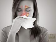 Tin tức sức khỏe - Bệnh viêm xoang mũi có mủ và cách điều trị an toàn, hiệu quả từ thảo dược