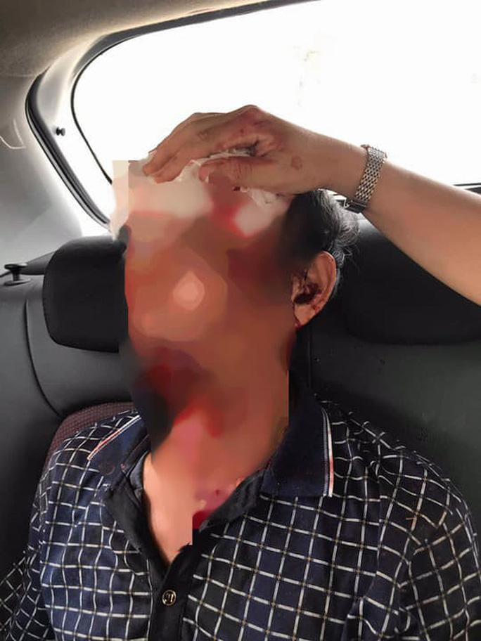 Hé lộ nguyên nhân 3 người đang ăn cơm bị bắn trọng thương ở Thanh Hóa - 1