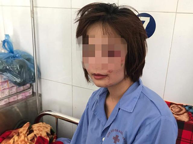 Nữ nhân viên xe buýt kể phút kinh hoàng bị 4 thanh niên đánh bầm dập trong ngày 20/10
