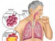 Biến chứng nguy hiểm của bệnh viêm phổi không thể làm ngơ kẻo hối hận không kịp