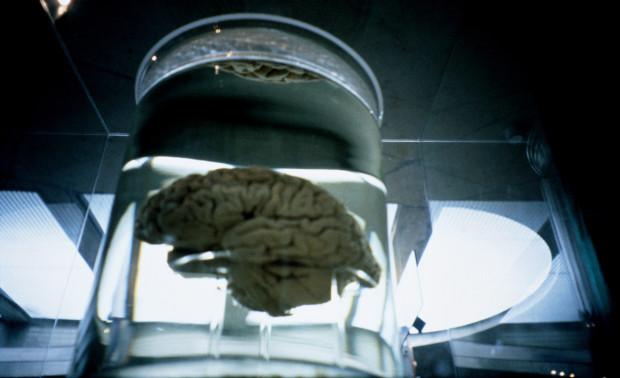 Đáng sợ khi não người được tạo ra trong phòng thí nghiệm cũng biết suy nghĩ? - 1