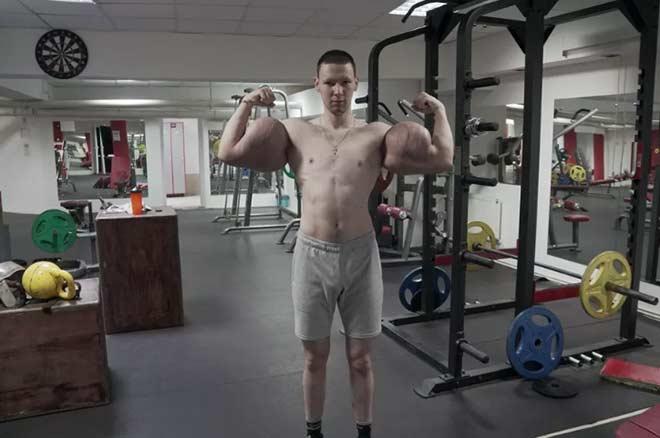 Lực sỹ tay to khổng lồ 60cm bẽ mặt sàn MMA: Phải kiếm tiền để chữa tay - 1