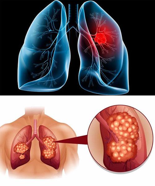 Đẩy lùi ung thư phổi như thế nào để đạt hiệu quả cao? - 1