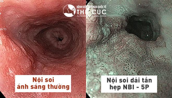 Nội soi tiêu hóa công nghệ NBI 5P tại Bệnh viện Thu Cúc được tặng gói khám tổng quát - 1