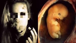 Tác hại đáng sợ của thuốc lá đối với sức khỏe sinh sản nữ giới - 1
