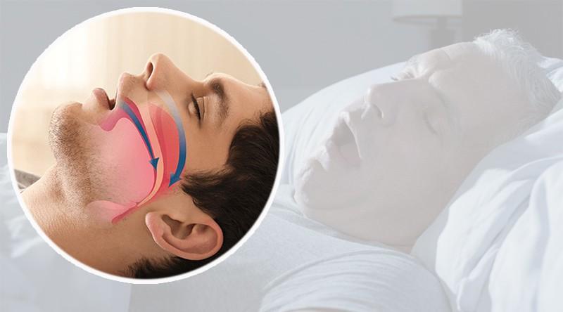 Ngủ ngáy không phải cho 'vui nhà' mà có nguy cơ đột tử, ngừng thở - 1
