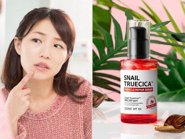 Top 6 sản phẩm trị mụn hiệu quả được phụ nữ Hàn yêu thích