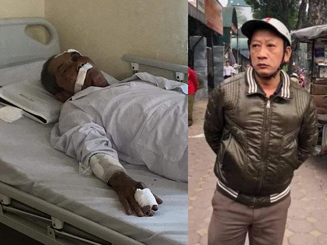 Hành hung cụ ông 80 tuổi gãy xương sườn, tài xế xe ôm khai lý do không ngờ