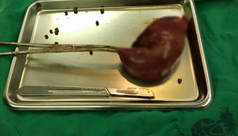 Người đàn ông phàn nàn đau bụng, bác sĩ phát hiện gần 1000 viên trân châu trong túi mật - 1