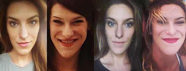 Khối u não không được chẩn đoán suốt 15 năm, mặt và tứ chi của cô gái bị biến dạng - 1