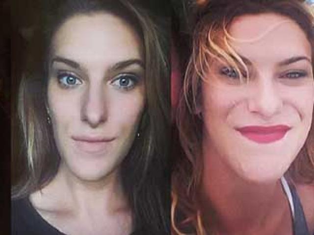 Khối u não không được chẩn đoán suốt 15 năm, mặt và tứ chi của cô gái bị biến dạng