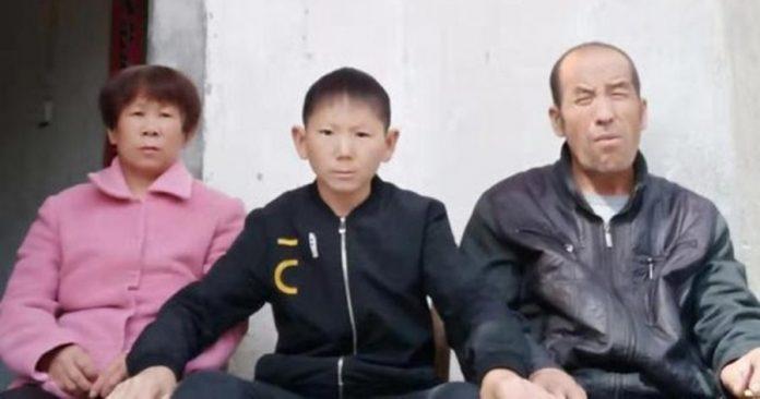 Chấn thương đầu khiến người đàn ông 34 tuổi trông như một đứa trẻ - 1