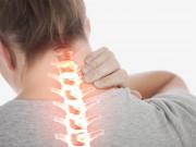 Tin tức sức khỏe - Thoát vị đĩa đệm cổ: Triệu chứng và cách chữa hiệu quả tư vấn bởi chuyên gia