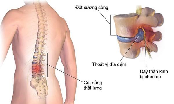Thoái hóa cột sống là gì? Triệu chứng, cách chữa giúp khỏe khớp chắc xương - 1