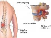 Tin tức sức khỏe - Thoái hóa cột sống là gì? Triệu chứng, cách chữa giúp khỏe khớp chắc xương