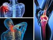 Tin tức sức khỏe - Bệnh viêm khớp: Hiểu nguyên nhân, triệu chứng để điều trị hiệu quả không tái phát