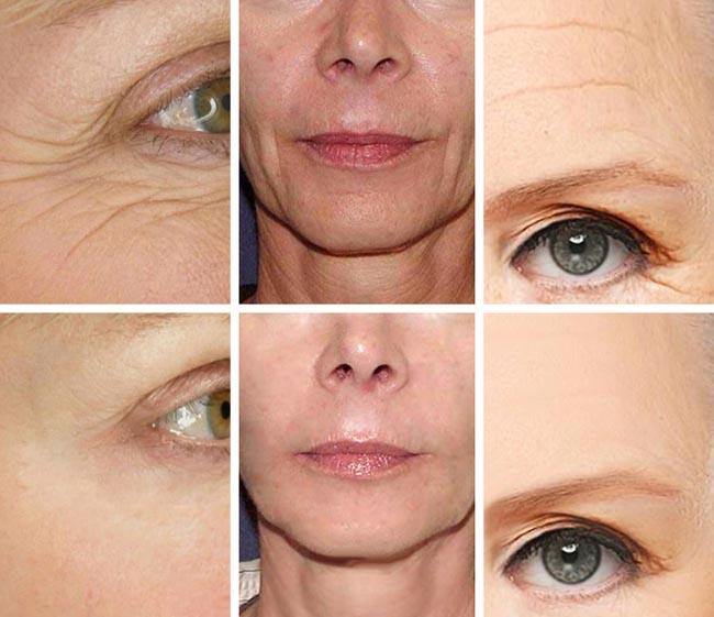 5 loại mỹ phẩm giúp giảm nếp nhăn, làm căng da mặt cực hiệu quả - 1