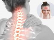 Tin tức sức khỏe - Thoái hóa đốt sống cổ gây đau đầu, thiếu máu não và cách chữa hiệu quả từ thảo dược