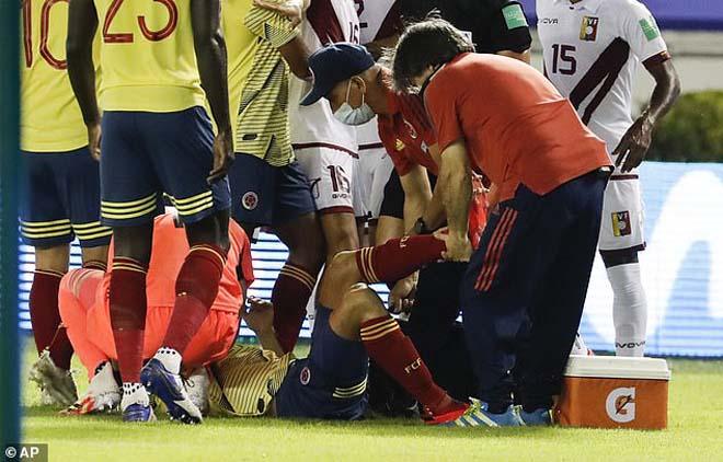 SAO Atletico gãy chân khủng khiếp, James Rodriguez ôm đầu kinh hoàng - 6