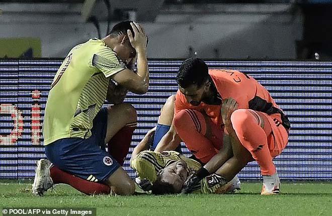 SAO Atletico gãy chân khủng khiếp, James Rodriguez ôm đầu kinh hoàng - 4