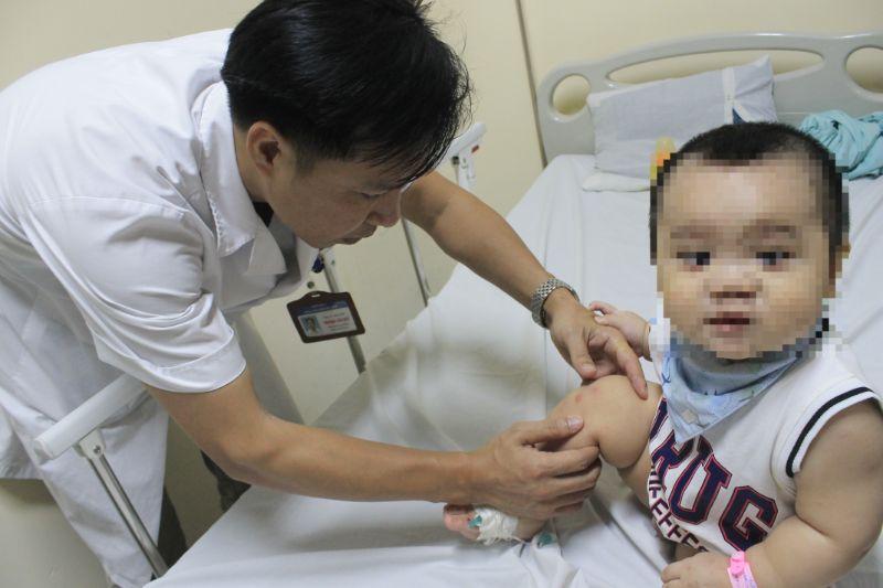 Nhiều trẻ bị biến chứng viêm não, viêm màng não, thần kinh do tay chân miệng - 1