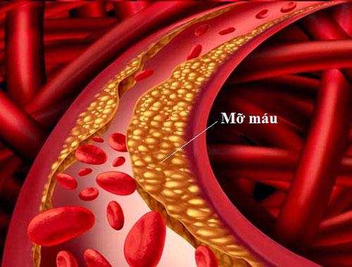 Bất ngờ với cách làm sạch mạch máu, ngừa tai biến của người Nhật - 1