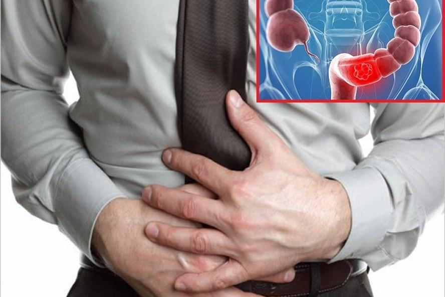 Muốn xử lý viêm đại tràng hiệu quả cần nhớ 4 nguyên tắc này - 1